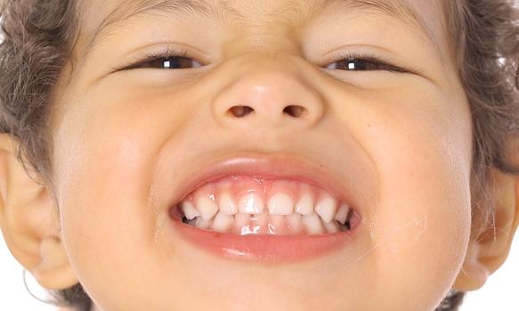 ¿Quieres saber cuándo se caerán los dientes de leche de tus hijos?